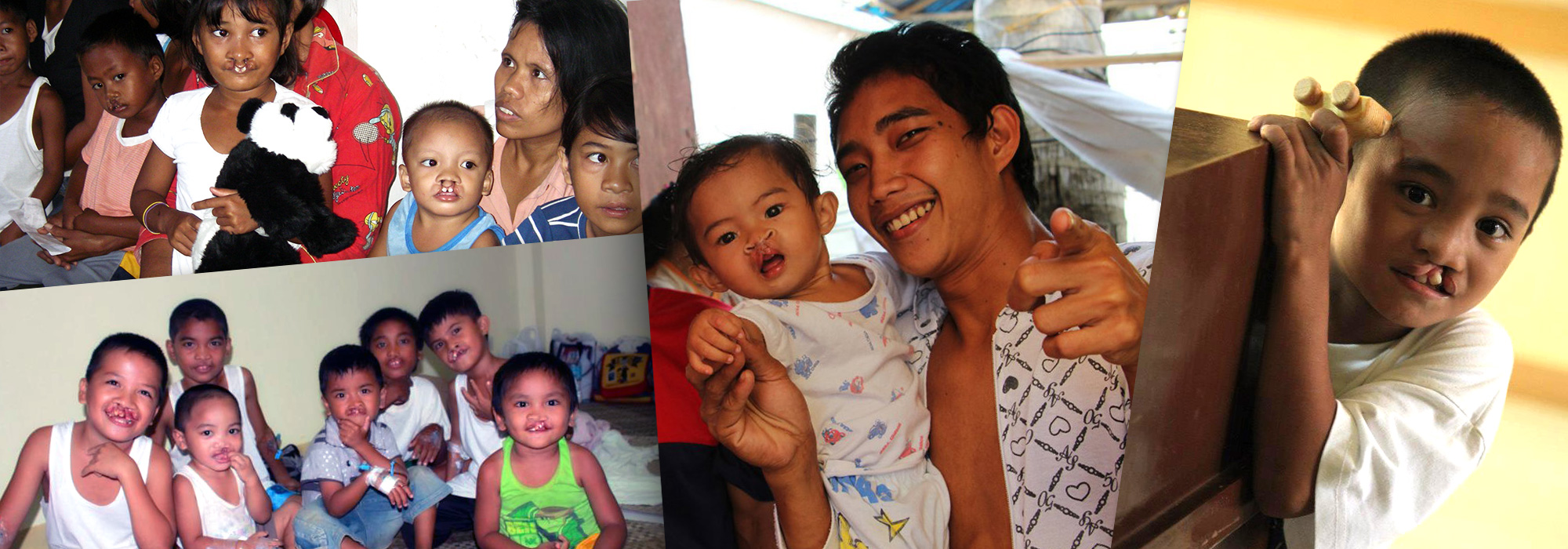 8,000 children are born in the Philippines each year with a facial deformity