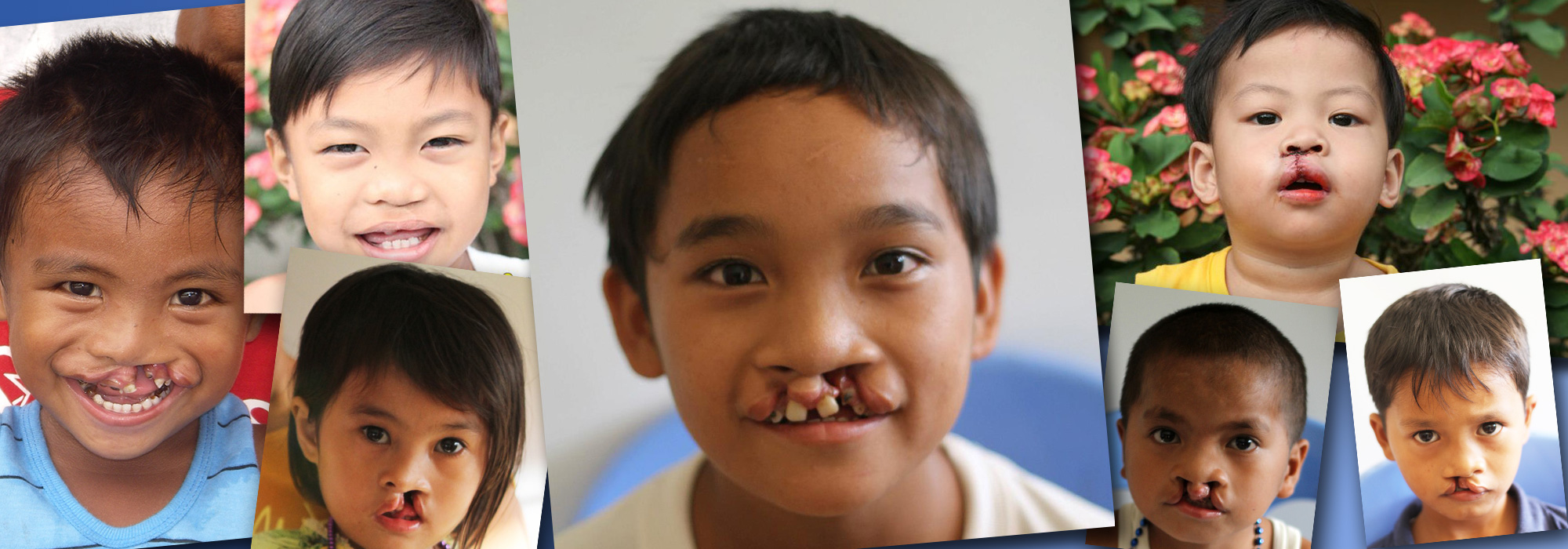 Children with facial deformities in the Philippines overwhelmingly live in rural areas with little access to health care